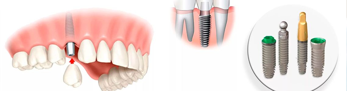 Сьогодні існує безліч способів імплантації зубів 77b00d84071fc