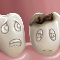 Treatment and prevention of dental caries