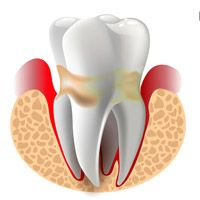 Treatment and prevention of periodontitis
