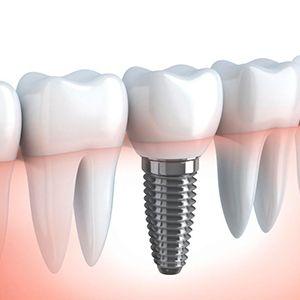 """Результат пошуку зображень за запитом """"протезирование зубов"""""""