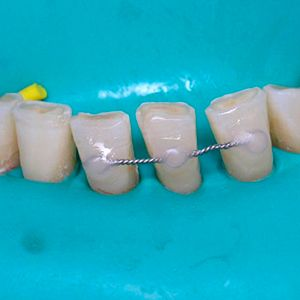 Splinting of teeth