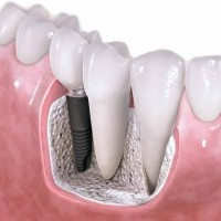 implantologia dentale kiev