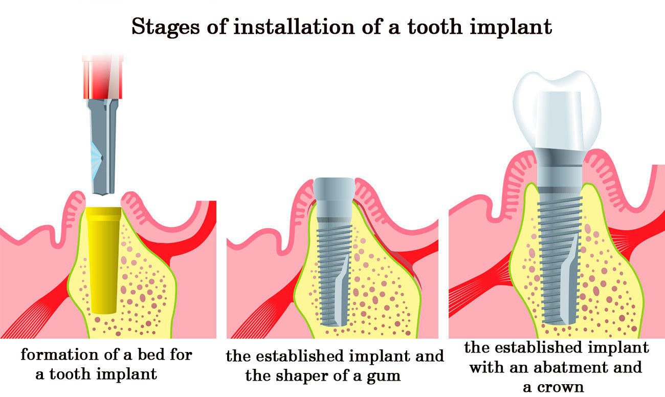 stages of instalation of tooth implant